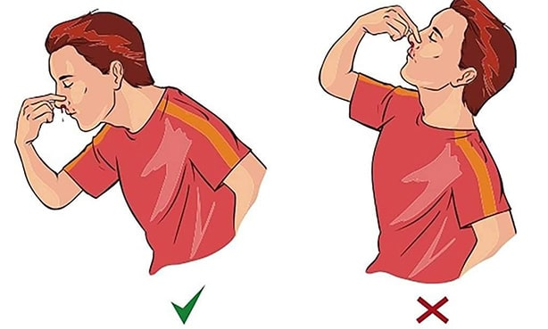 Способ остановить кровь из носа