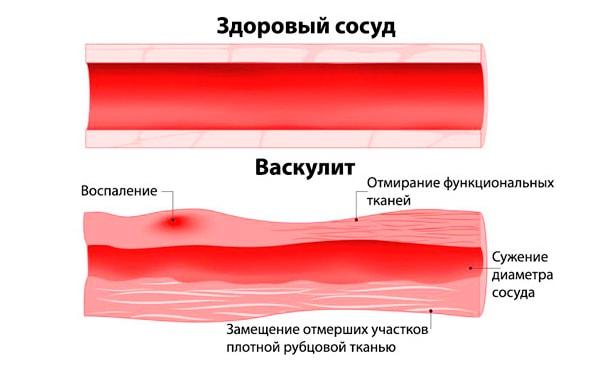 Васкулит, воспаление сосуда