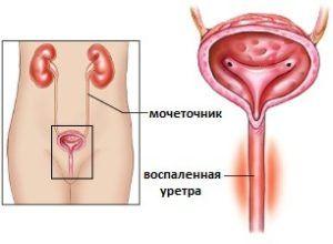 Уретрит у женщин