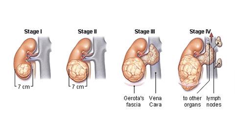 Рак почки симптомы и признаки у мужчин стадии