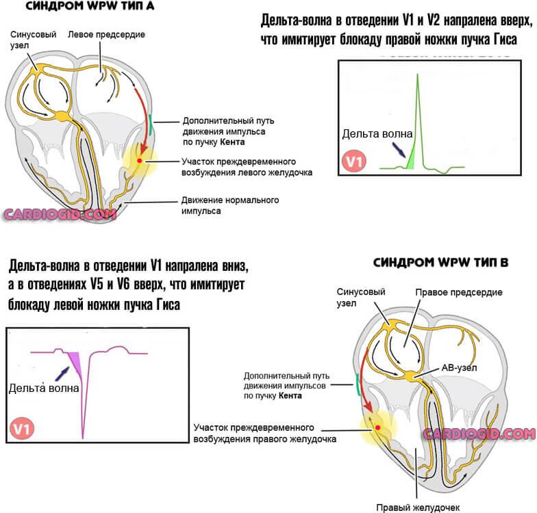 Синдром WPW тип А и тип В