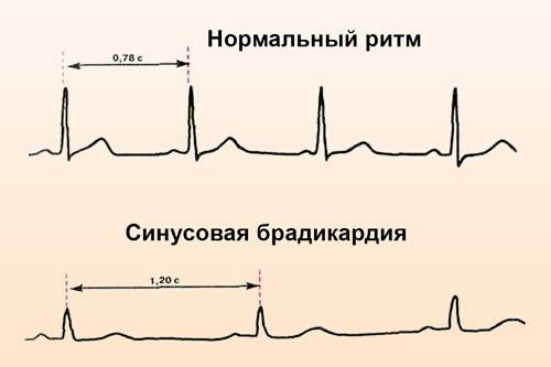 Синусовая брадикардия на ЭКГ