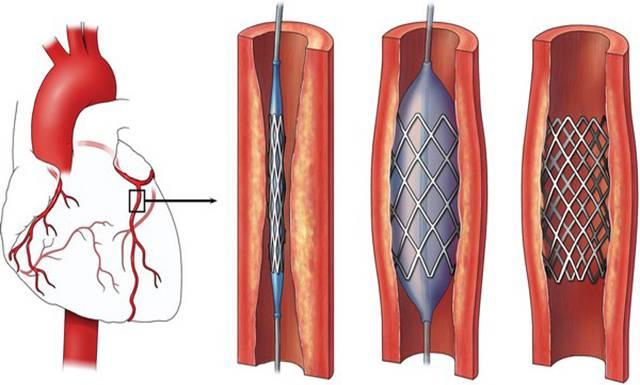 Стентирование артерий сердца