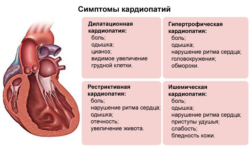 Симптомы кардиопатий
