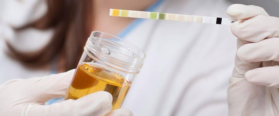Кетоны в моче причины (ацетон в моче) введение