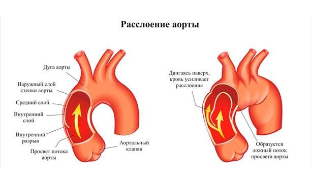 Расслоение восходящей аорты