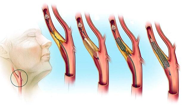 Ангиопластика со стентированием сонной артерии