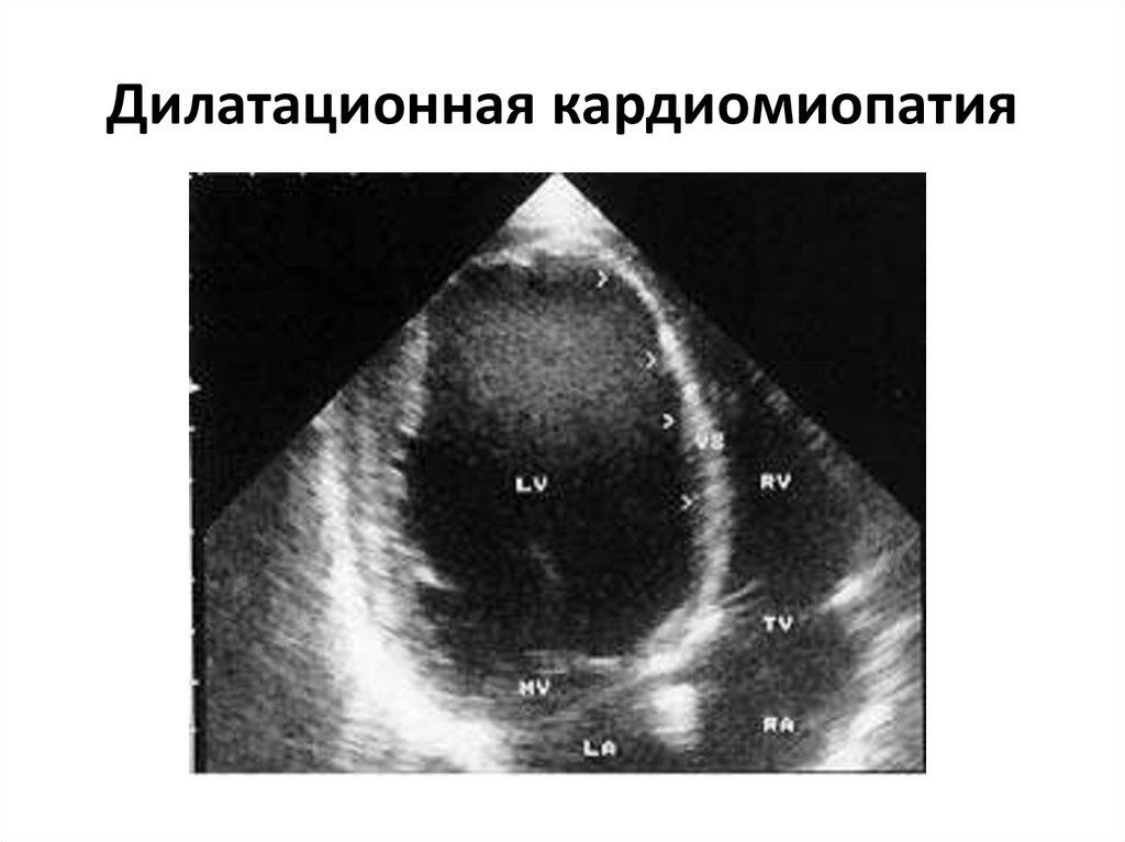 Дилатационная кардиомиопатия, снимок