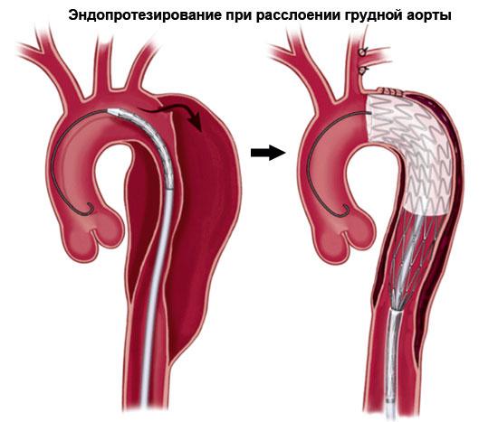 Эндопротезирование при расслоении аорты