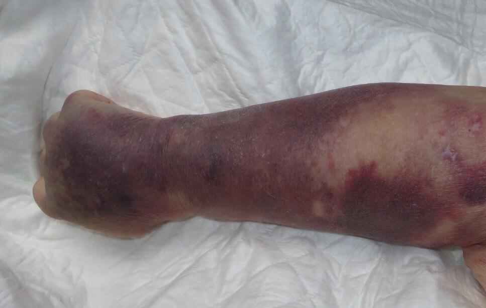 Синяки на коже при тромбоцитопении