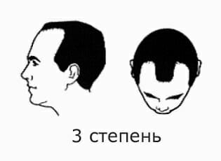 3 степень