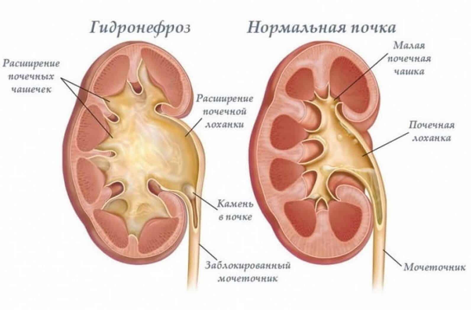 Закупоривание мочеточника камнем приводит к растяжению почечных чашечек и лоханки