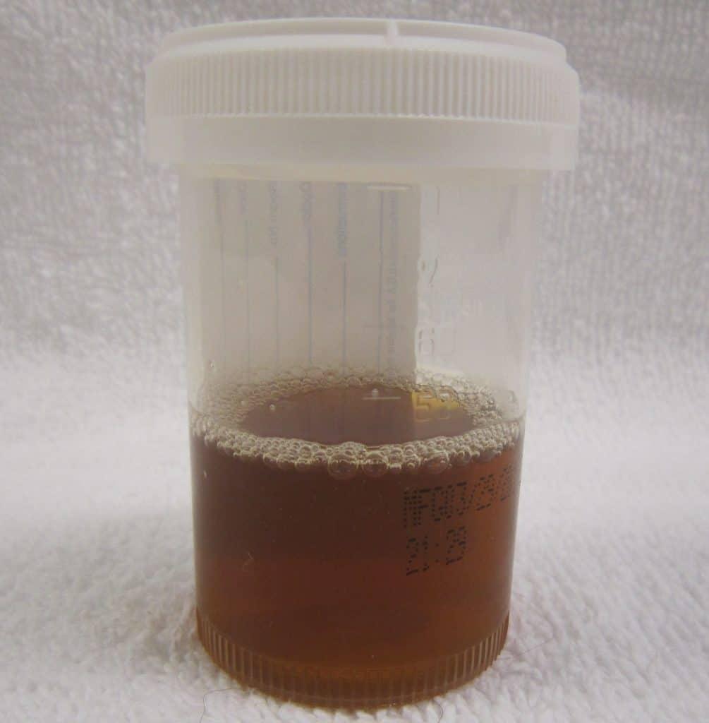 На фото темная мутная моча при гидрокаликозе