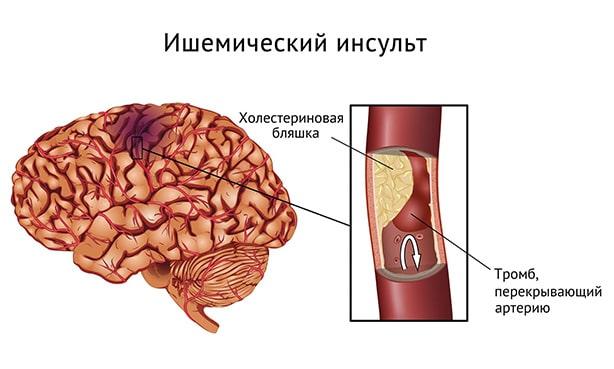 Поражение мозга при ишемическом инсульте