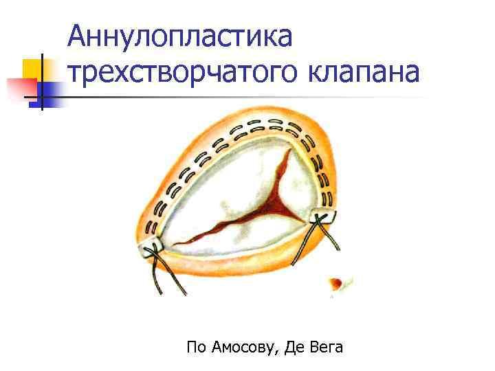 Аннулопластика