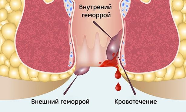 Кровотечение из внутренних геморроидальных шишек
