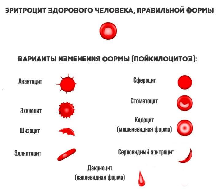 Формы эритроцитов при пойкилоцитозе
