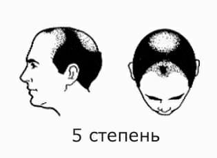 5 степень