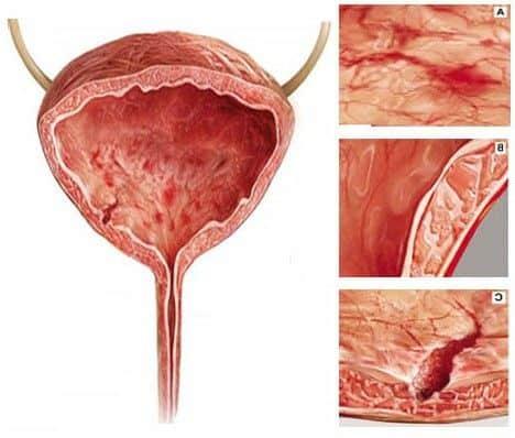 цистит мочевого пузыря симптомы у ж