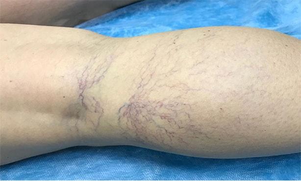 Венозные звездочки на ногах