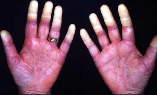 Синдром Рейно, фото мужской руки
