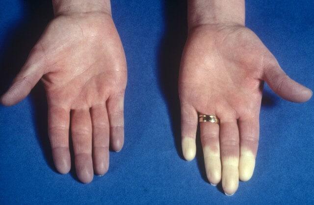 Синдром Рейно, фото женской руки