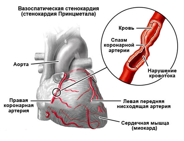 Спазм коронарной артерии
