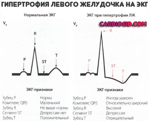 Гипертрофия левого желудочка сердца на ЭКГ