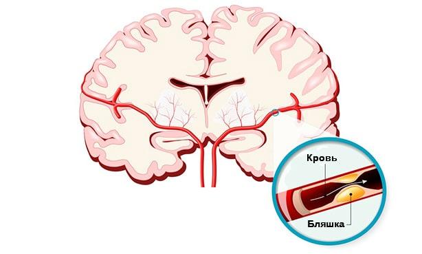 Сужение артерии головного мозга атеросклеротической бляшкой