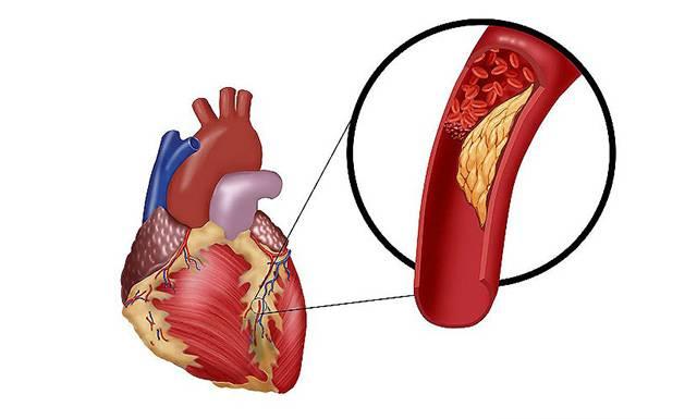 Холестериновая бляшка в сосудах сердца