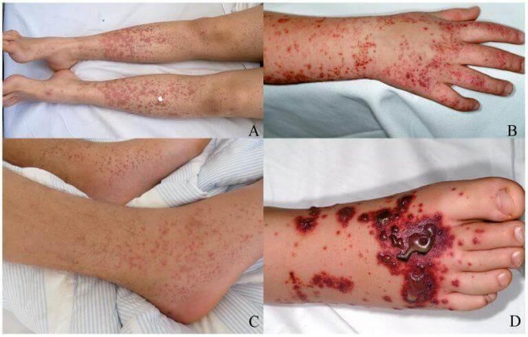 Кровоизлияния на коже