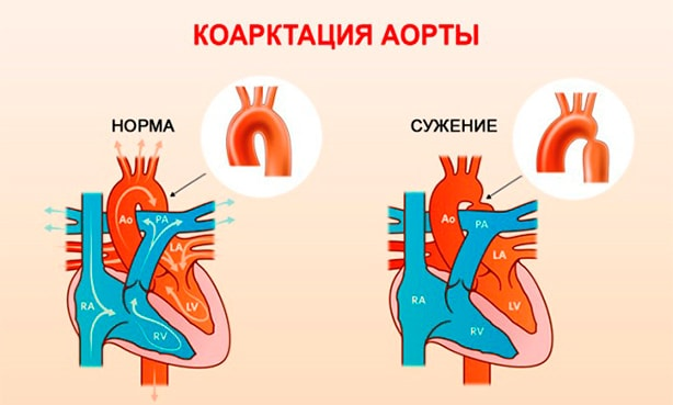 Сужение (коарктация) аорты