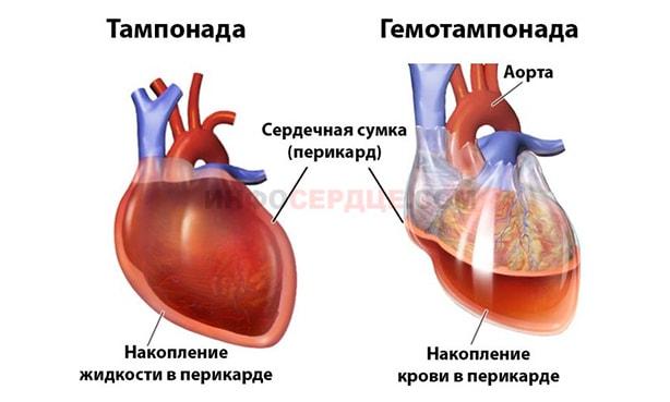 Изображение тампонады и гемотампонады сердца