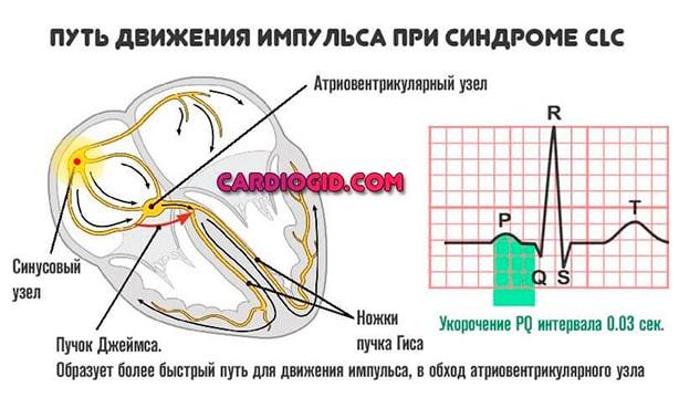 Путь движения импульса при синдроме CLC