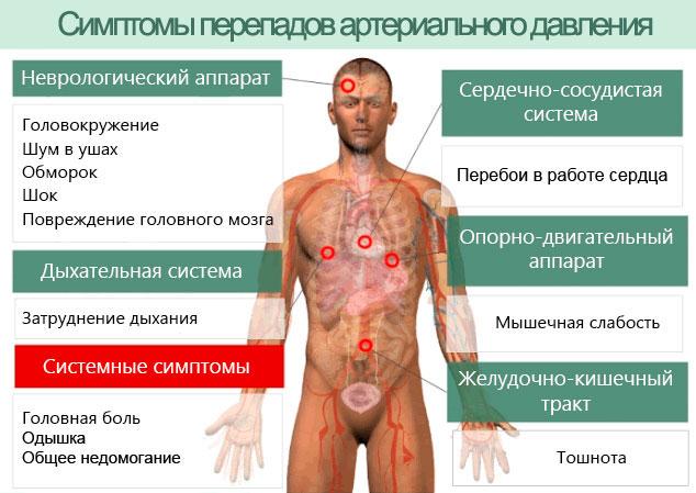 Симптомокомплекс перепадов АД