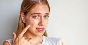 Акне у девушки на лице