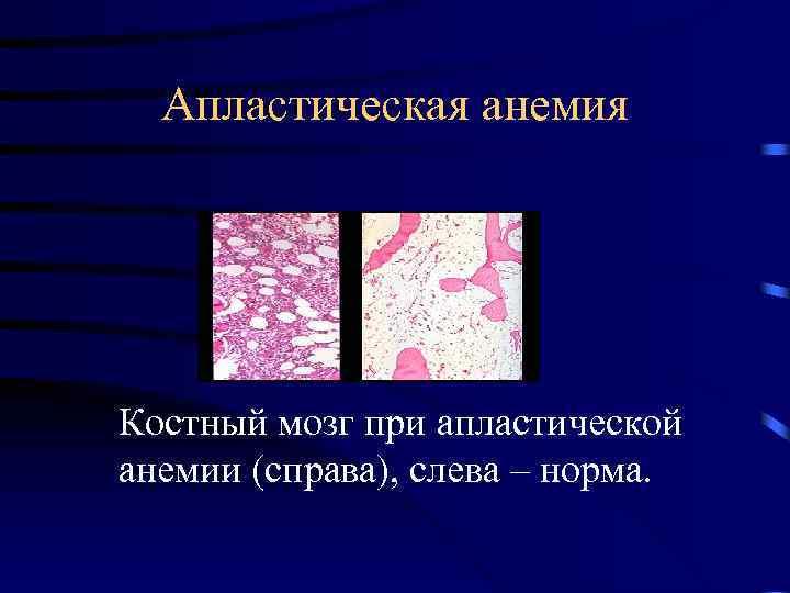 Апластическая анемия, состояние костного мозга