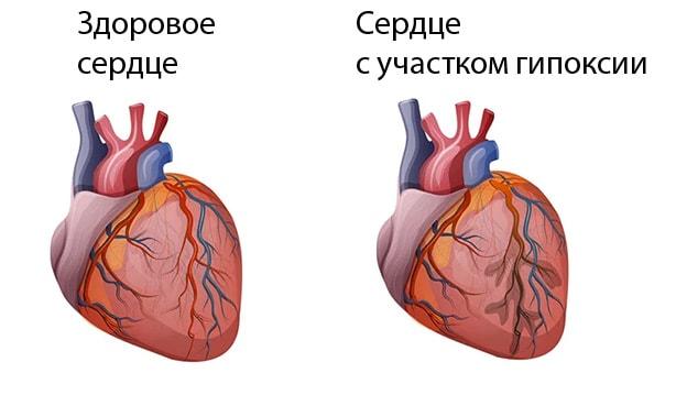 Сердце, с участком гипоксии