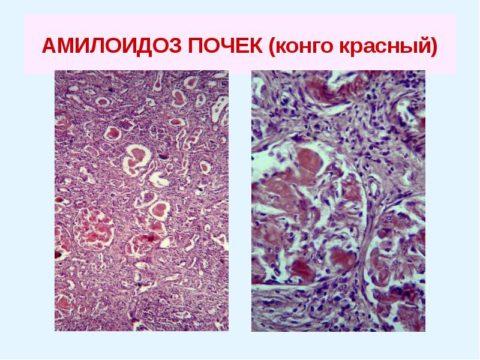 Амилоиды провоцируют образование соединительной ткани.