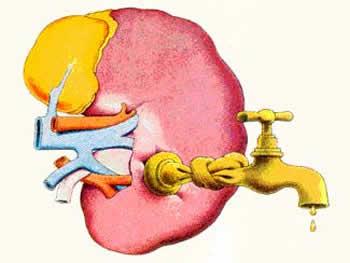 Анурия возникает при закупорке конкрементом мочеиспускательного канала.