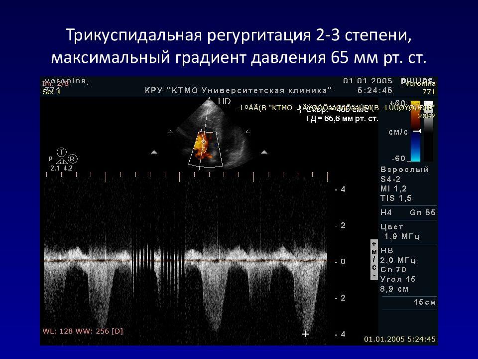 Трикуспидальная регургитация 2-3 степени при ЭхоКГ