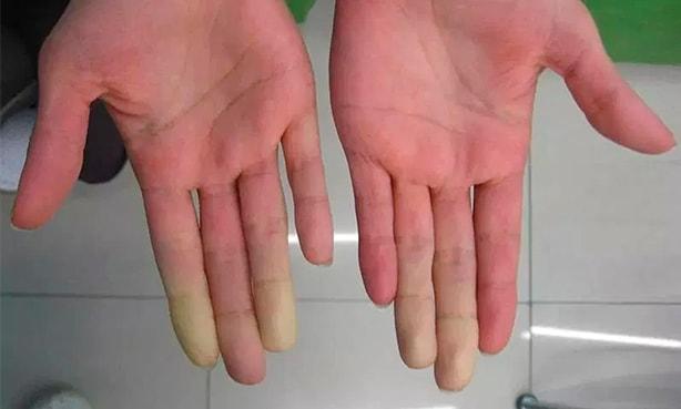 Пальцы при болезни Рейно