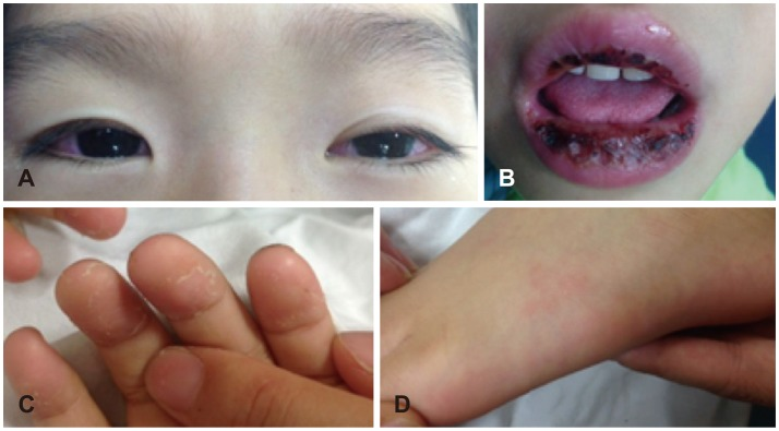 Проявления болезни Кавасаки
