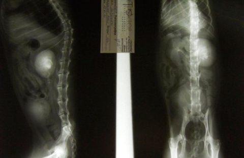 Благодаря урографии можно увидеть не только состояние внутренних органов и скелет человека.