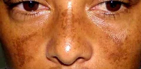 Болезнь Аддисона получила название «бронзовая болезнь» из-за основного признака пигментации кожи.
