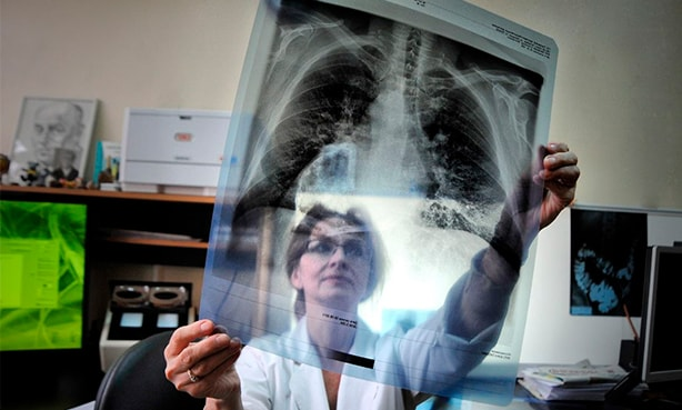 Снимок легких, ковидная пневмония
