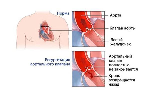 Недостаточность аортальных клапанов
