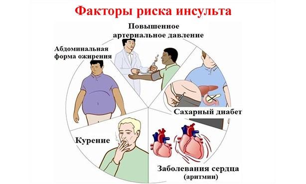 Инсульт: факторы риска