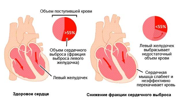 Механизм выталкивания крови сердцем
