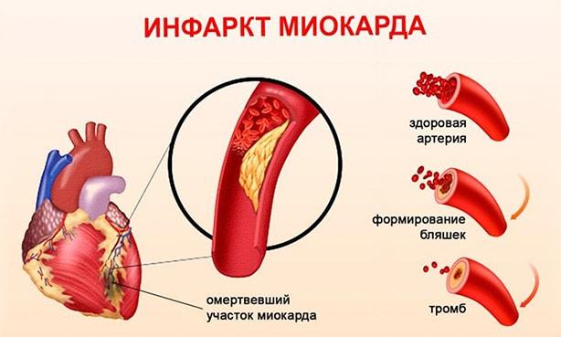 Острый инфаркт миокарда, механизм появления бляшки и тромба